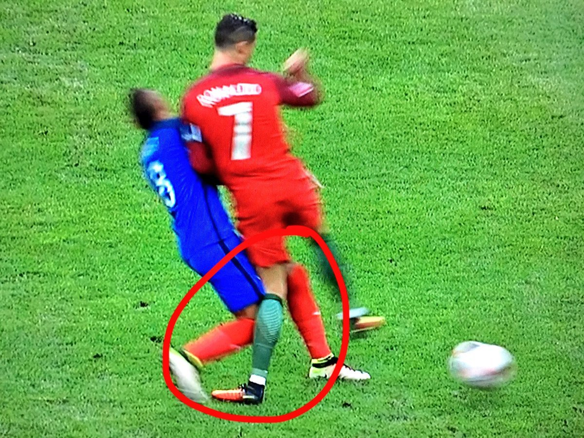 ronaldo mcl sprain2